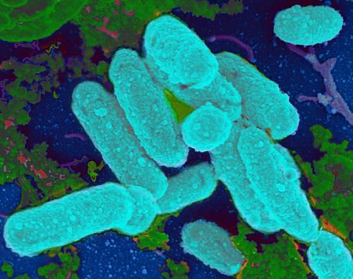 Гемофильная инфекция — одна из частых причин патологии