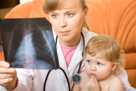 Больной пневмонией ребенок