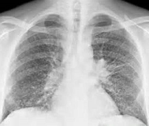 Бронхиальная карцинома – рак у курильщика со стажем 13 лет