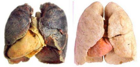 Легкие курильщика (слева), легкие здорового человека (справа)