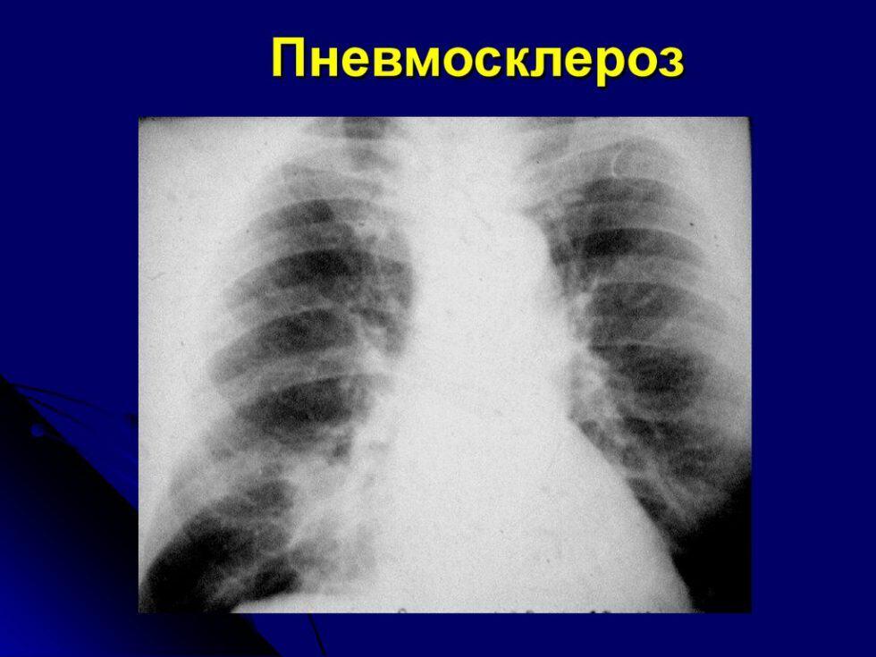 Пневмосклероз рисунок легких деформирован это