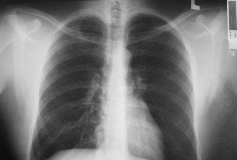 Рентгенограмма подтверждает наличие бронхита хронической формы