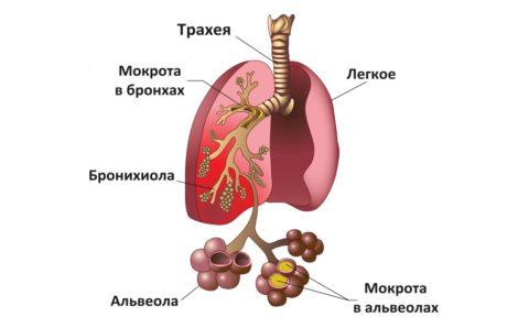 Схематическое изображение альвеол при пневмонии