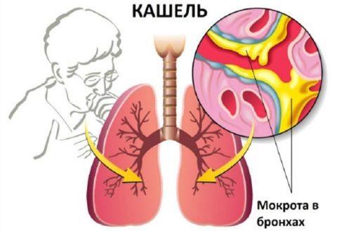 Симптомы, с которыми кладут в больницу