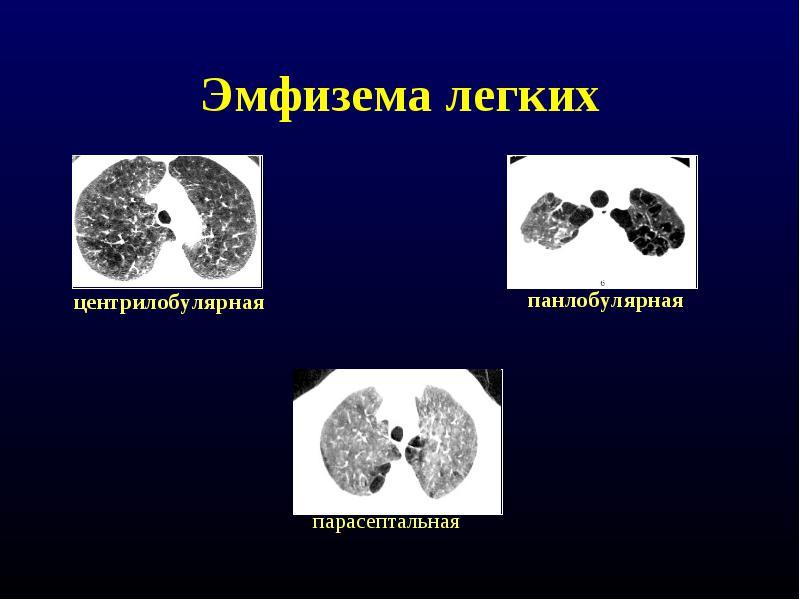 Заболевание развивается в разных формах и развивается стадийно