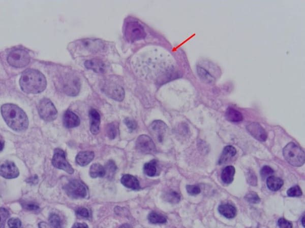 Стрелка указывает на клетку хламидии