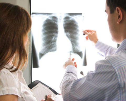 Четкие признаки пневмонии доступны врачу на рентгене.