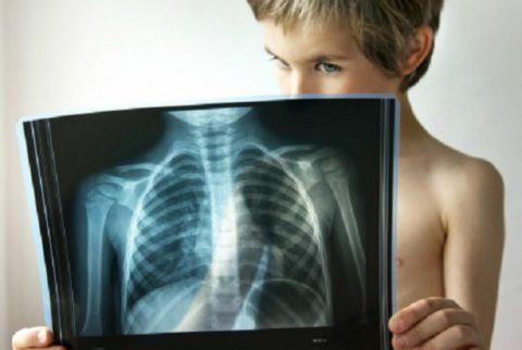 Диагностика пневмонии у детей.