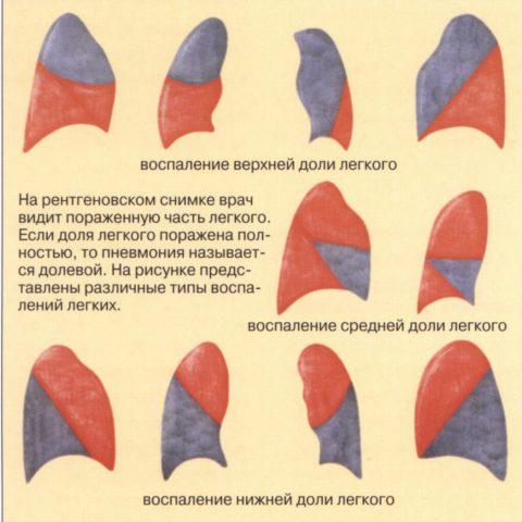 Долевые пневмонии
