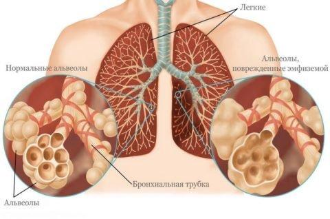 Эмфизема часто осложняет течение хронических легочных болезней