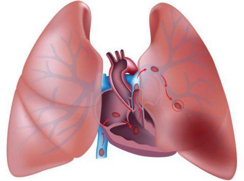 Это состояние вызвано изменением кровоснабжения легкого в связи с закупоркой легочных сосудов тромбом или эмболом