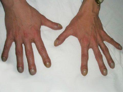 Фото. Важный признак: появление «барабанных палочек» на руках