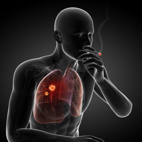 Именно образ жизни пациента во многом влияет на скорость развития рака