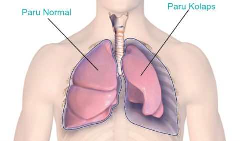 Искусственным пневмотораксом обездвиживают лёгкое