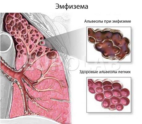 Изменение альвеолы при эмфиземе