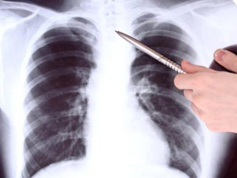 Контузия лёгкого - опасное состояние