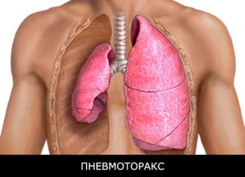 Какие признаки указывают на проявление пневмоторакса.