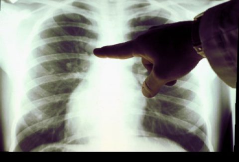 Курение приводит к патологическим изменениям