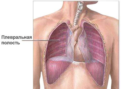 Локализация и распространенность воспаления имеет важное значение в прогнозе заболевания
