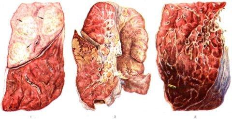Макропрепарат лёгкого при пневмонии, вызванной палочкой Фридлендера, на разных стадиях заболевания