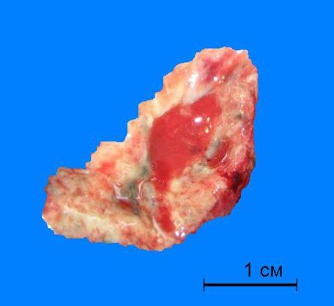 Макроскопический препарат «Казеозный некроз шейного лимфатического узла при туберкулезе»