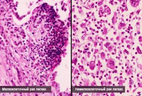 Мелкоклеточный рак.