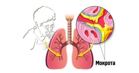 Мокрота – основной элемент болезни, по ней можно судить о ее течении