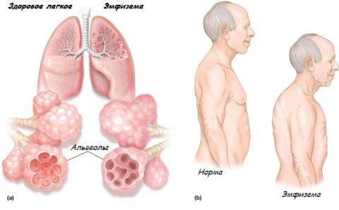 Патология даёт осложнения во многих органах