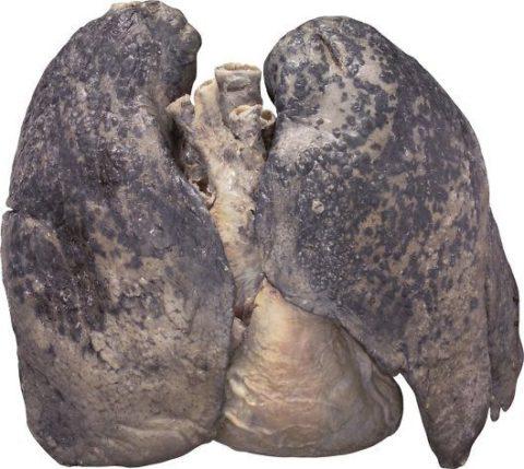 Вот такие изменения в лёгких курящего наблюдают патологоанатомы