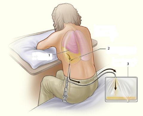 Плевральная пункция – и диагностическая, и лечебная процедура