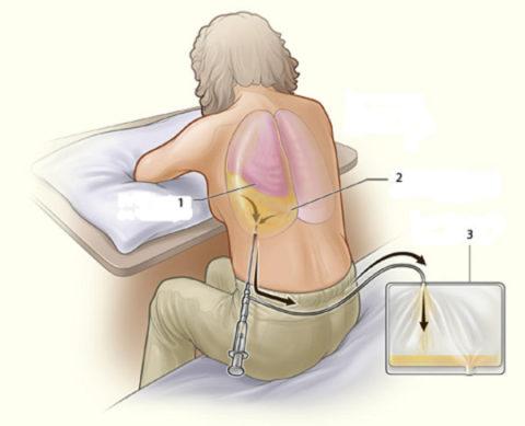 Плевральная пункция с лечебной целью позволяет убрать всю лишнюю жидкость