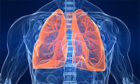 Крупозное воспаление легких - одна из причин, по которой умирают люди