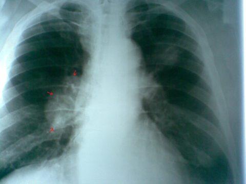 Что врач видит на рентгенограмме?