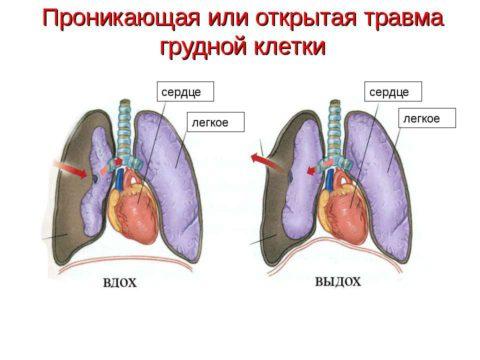 Последствия открытой травмы