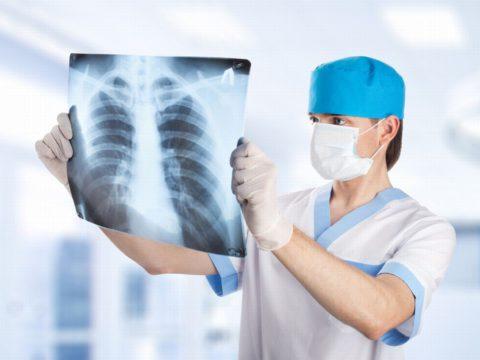 Появление экссудата в плевральной помощи требует срочного лечения