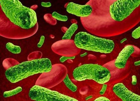 При бактериемии возникает множество гнойных очагов по всему организму