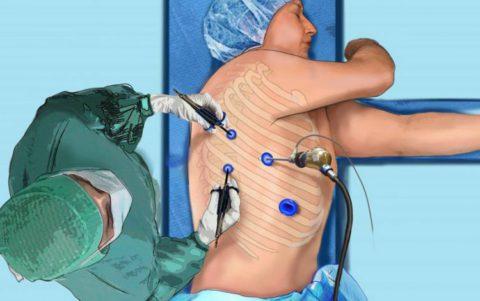 При развитии осложнений показано оперативное лечение