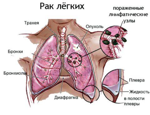 При росте опухоли этот симптом изменяется в зависимости от локализации, степени увеличения внутригрудных лимфоузлов и прорастания ее в бронхи, альвеолы и плевру