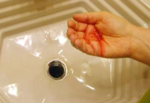 Присутствие крови в мокроте.