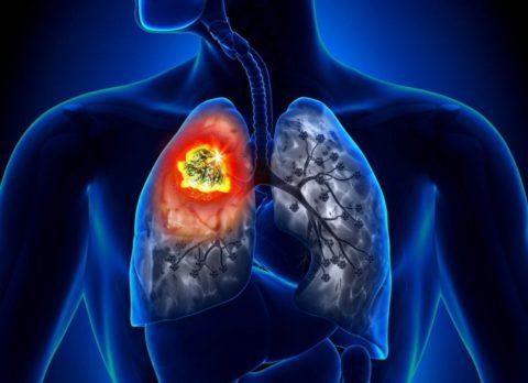 Ранняя диагностика рака легких значительно улучшает вероятность благоприятного исхода болезни и даже ее полного излечения