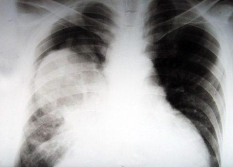 Рентгенологические проявления рака легкого