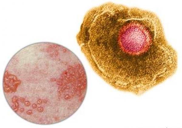 Herpes zoster virus microscope
