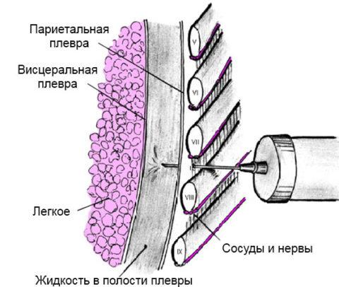 Схема выполнения плевральной пункции