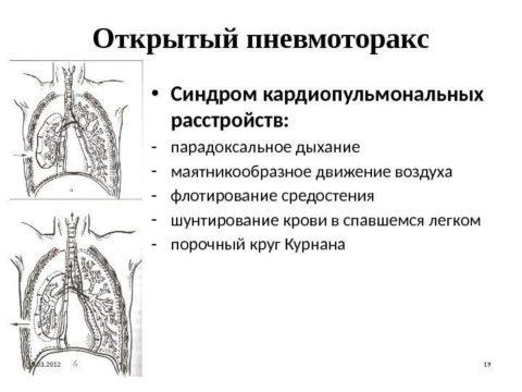 Синдром открытого пневмоторакса