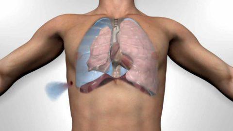 Спадение легкого после травмы грудной клетки