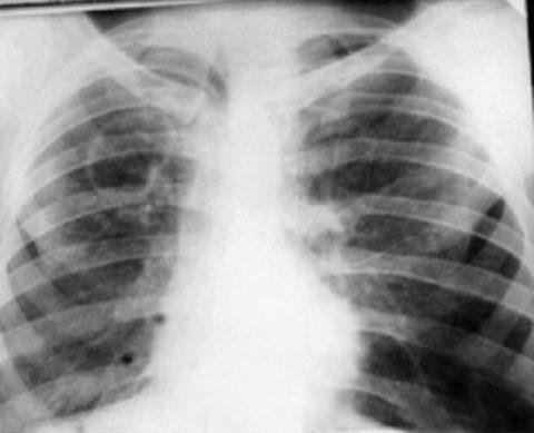 Туберкулезная каверна верхней доли справа