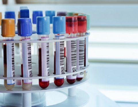 В анализах крови выявляются признаки воспаления