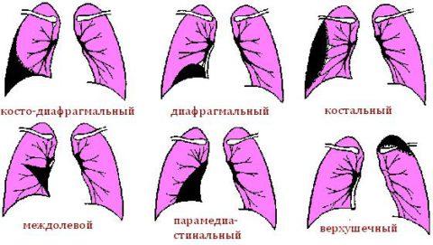 Виды плеврита в зависимости от локализации