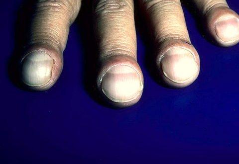 Внешний вид ногтей с симптомом часового стекла и пальцев по типу барабанных палочек