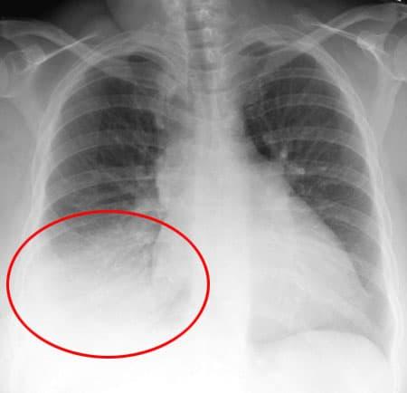 Воспаление легких: данные рентгенографии.
